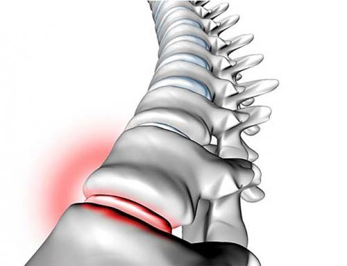 Une des première cause d'arrêt de travail : le mal de dos