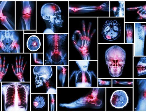 20 sources de douleur qui sont liées à des états émotionnels spécifiques